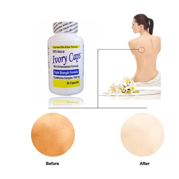 Viên uống trắng da Ivory Caps Glutathione trị nám, tàn nhang
