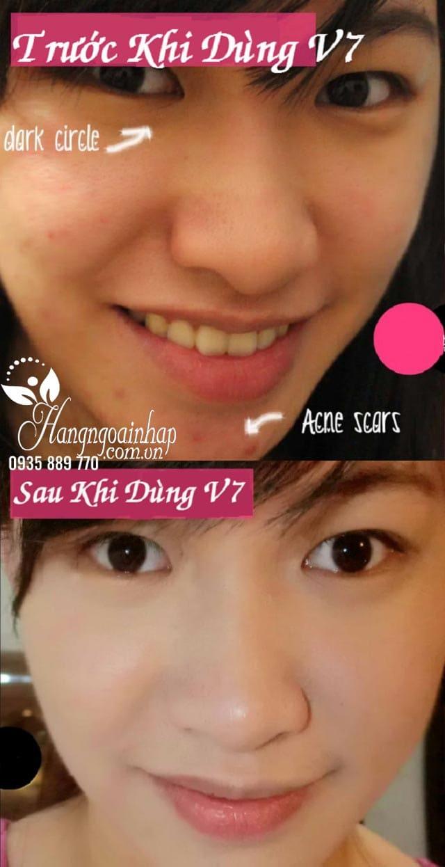 kem-duong-trang-da-v7-toning-light-dr-jart-50ml-cua-han-quoc-truoc-sau3