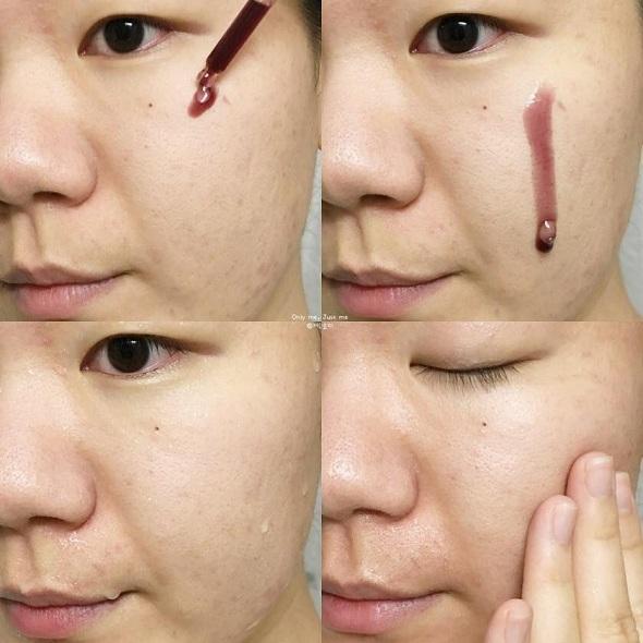 Peel da không bong tróc Red Peel Tingle Serum Hàn Quốc 3