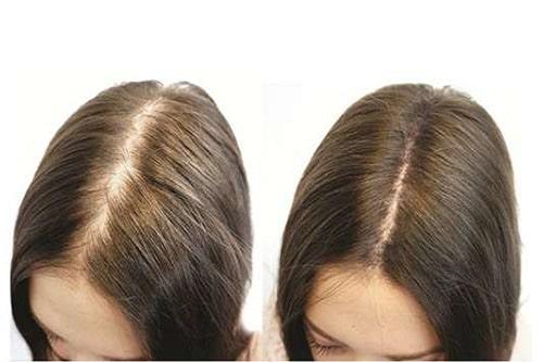 Thuốc chống rụng tóc và kích thích mọc tóc loại nào tốt?