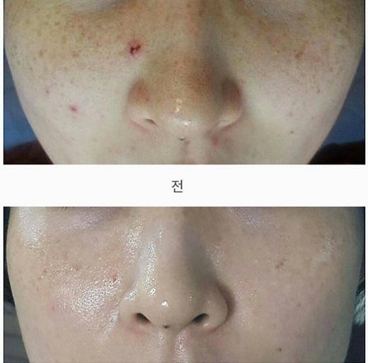Tế bào gốc Bqcell Re-Cell Hàn Quốc dưỡng trắng, nâng cơ mặt 3