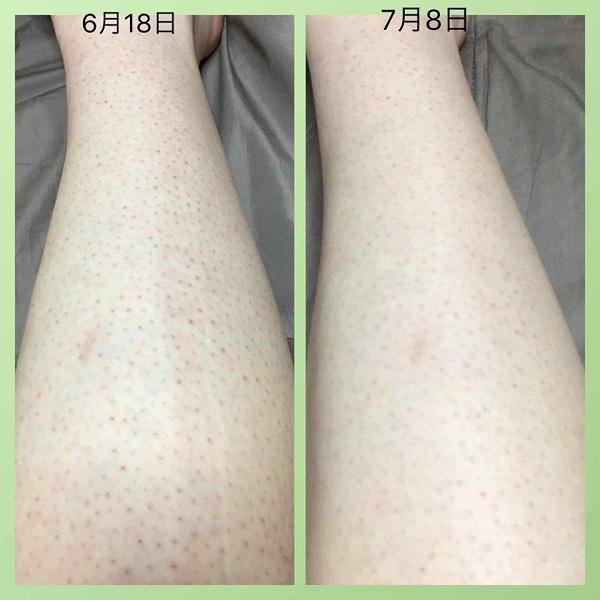 Kem trị viêm lỗ chân lông Kobayashi 20g nội địa Nhật Bản 4