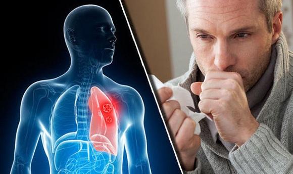 Lung Detox của Úc - Viên uống giải độc phổi của Healthy Care Úc 1