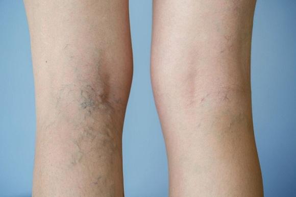 Leg Veins Nature's Way có tốt không? Phân tích chi tiết 1